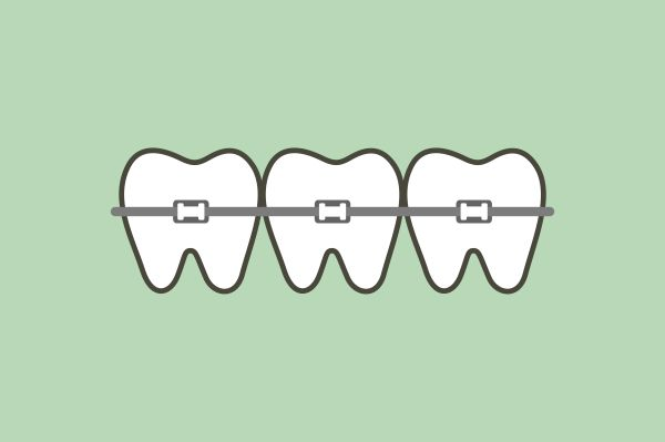 Tips For Orthodontics And Dental Hygiene