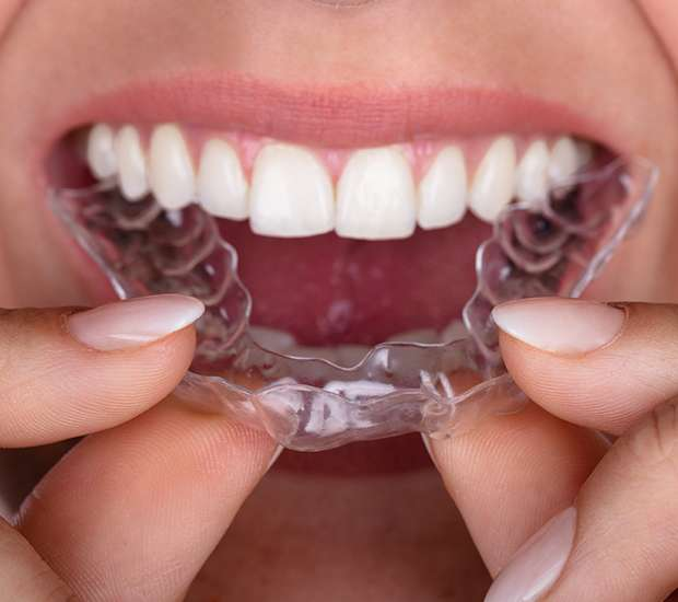 Woodruff Invisalign Orthodontist
