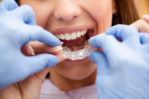 What Is Starting Orthodontic Treatment Like?